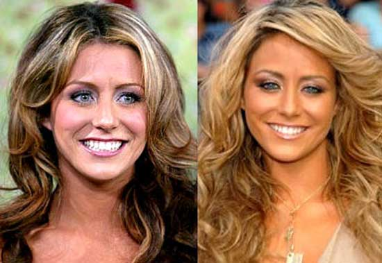 Aubrey O Day Before and After Plastic Surgery