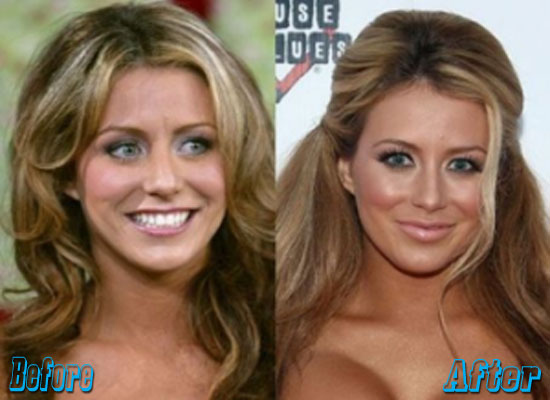 Aubrey O Day Plastic Surgery Before and After