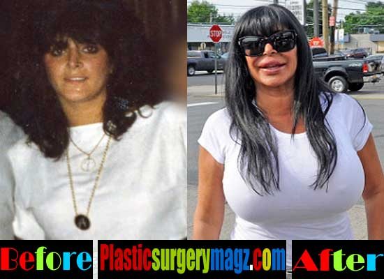 Big Ang Breast Implant Before and After