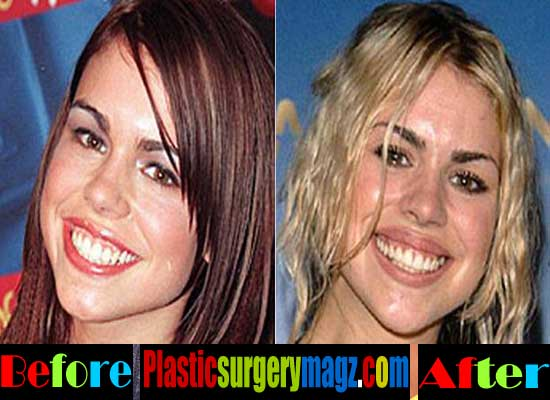 Billie Piper Before and After Plastic Surgery