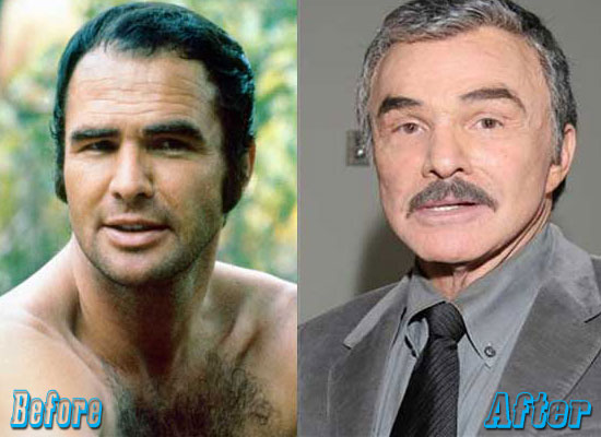 Burt Reynolds Before and After Plastic Surgery