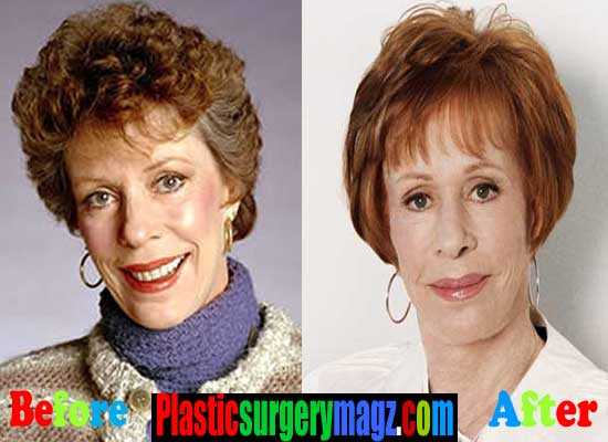 Carol Burnett Before and After Plastic Surgery