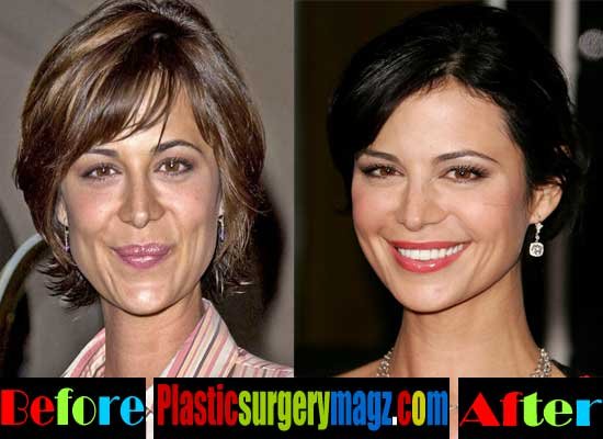 Catherine Bell Before and After Plastic Surgery