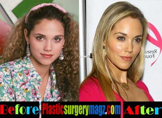 Elizabeth Berkley Nose Job Before and After