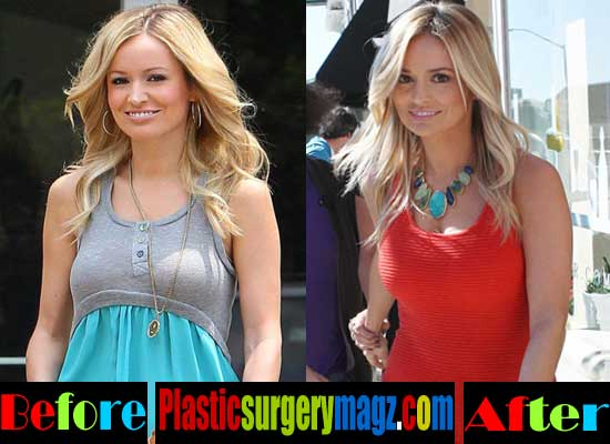 Emily Maynard Breast Implant Before and After