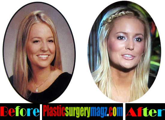 Emily Maynard Nose Job Before and After