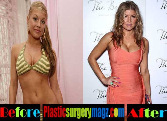 Fergie Breast Implant Before And After
