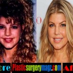 Fergie Plastic Surgery Before and After