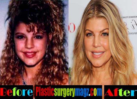Fergie Nose Job Before and After