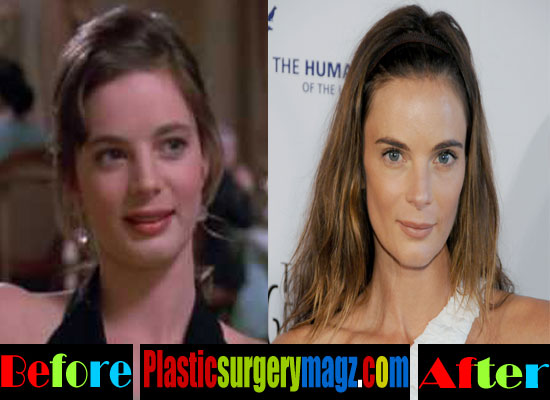 Gabrielle Anwar Nose Job Before and After
