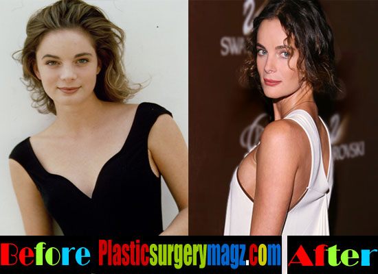 Gabrielle Anwar Plastic Surgery Breast Implants