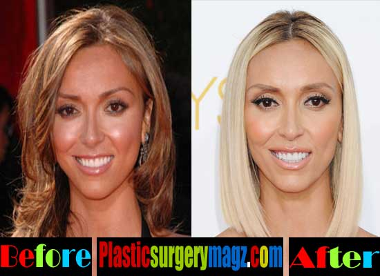 Giuliana Rancic Nose Job Before and After