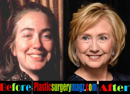 Hillary Clinton Before and After Plastic Surgery