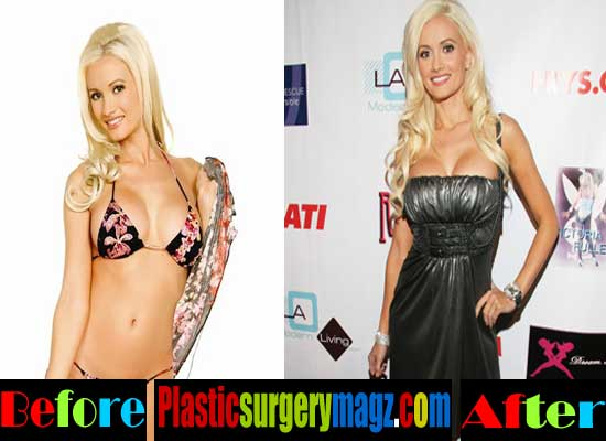 Holly Madison Breast Implant Before and After