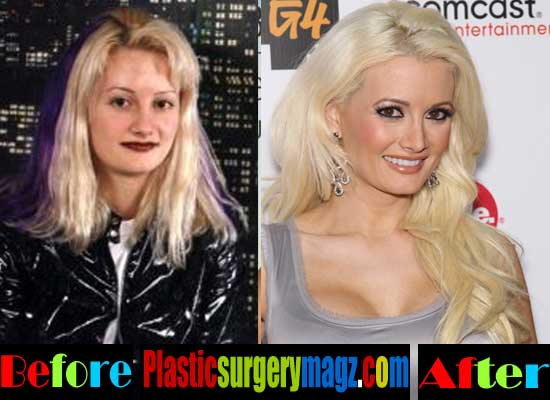 Holly Madison Plastic Surgery Nose Job