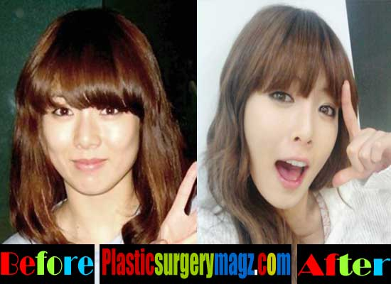 Hyuna Plastic Surgery Nose Job