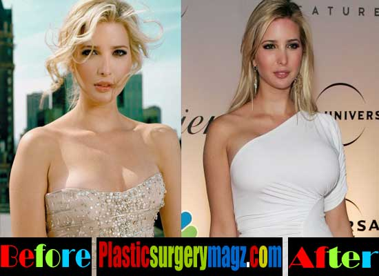 Ivanka Trump Breast Implant Before and After