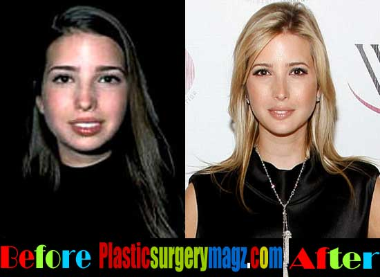 Ivanka Trump Nose Job Before and After