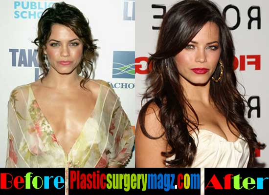 Jenna Dewan Breast Implant Before and After