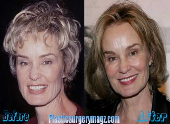 Jessica Lange Before and After Plastic Surgery