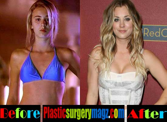 Young Breast Augmentation Before And After Kaley Cuoco Pla...