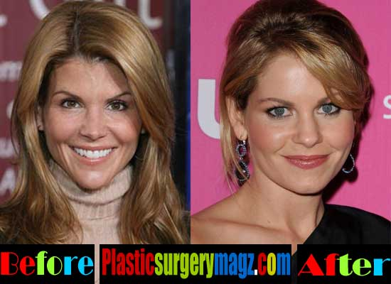 Lori Loughlin Plastic Surgery Facial Filler Injection