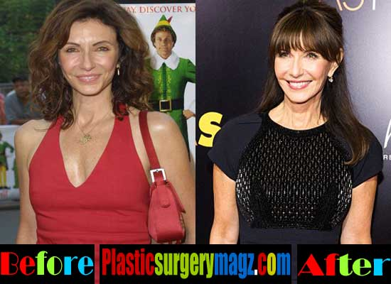 Mary Steenburgen Breast Implant Before and After