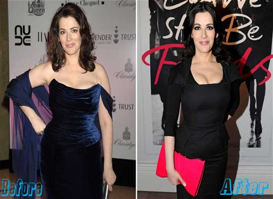 Nigella Lawson Before and After Plastic Surgery