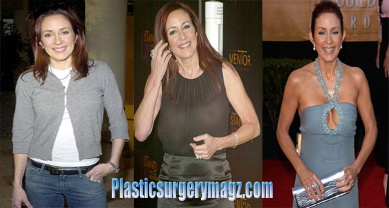 Patricia Heaton Breast Reduction