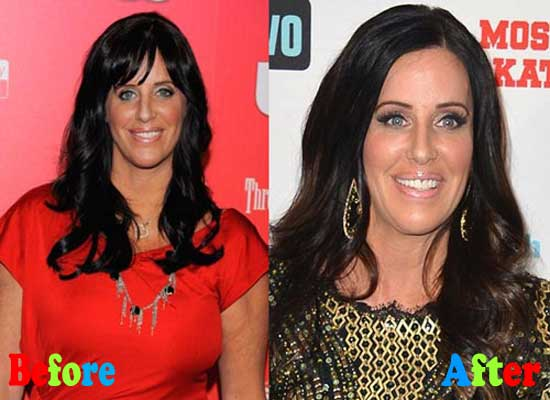 Patti Stanger Before and After Plastic Surgery