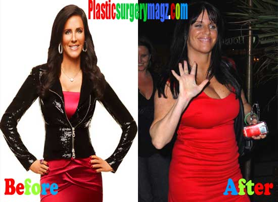 Patti Stanger Boob Job Before and After