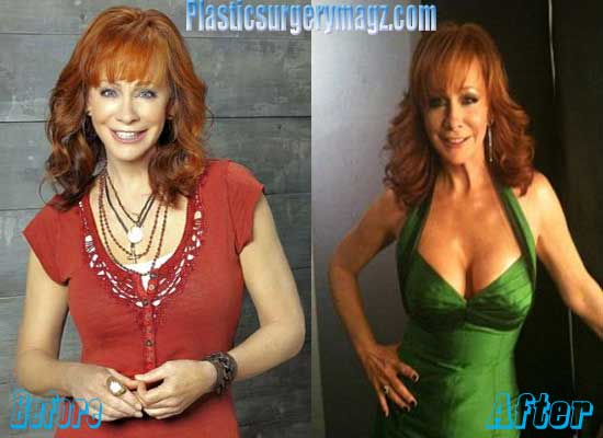 Reba Mcentire Breast Implant Before and After