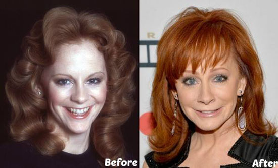 Reba Mcentire Plastic Surgery Before and After