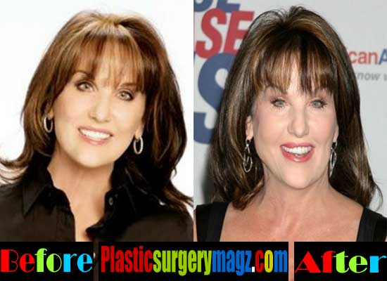 Robin Mcgraw Plastic Surgery Before and After