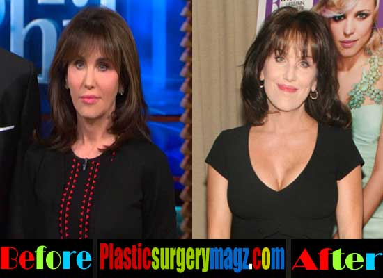 Robin Mcgraw Plastic Surgery Breast Implant