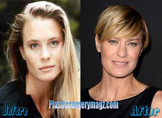 Robin Wright Before and After Plastic Surgery