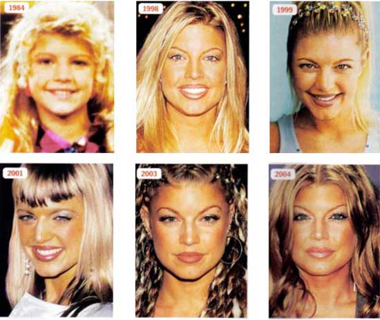 Stacy Ann Fergie Ferguson Plastic Surgery Transformation