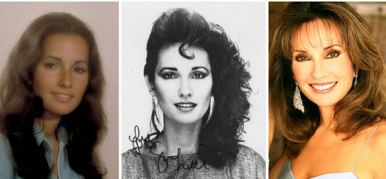Susan Lucci Before and After Plastic Surgery