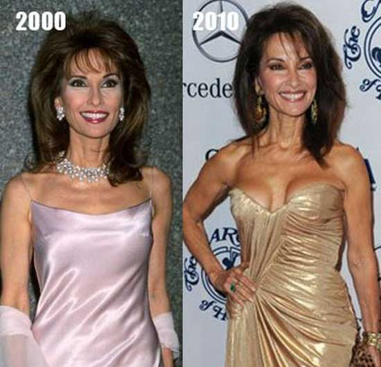 Susan Lucci Breast Implant Before and After