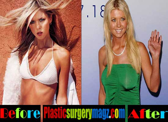 Tara Reid Breast Implant Before and After