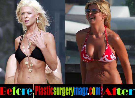Tara Reid Plastic Surgery Liposuction