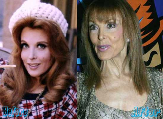 Tina Louise Before and After Plastic Surgery