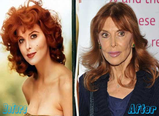 Tina Louise Plastic Surgery Before and After