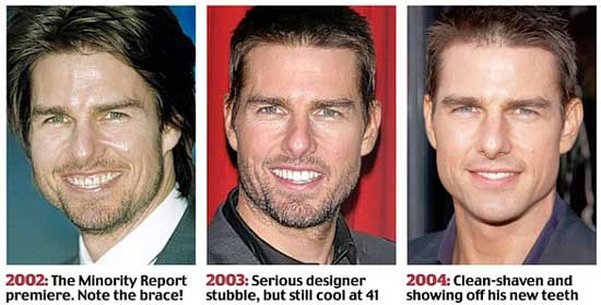 Tom Cruise Before and After Photos
