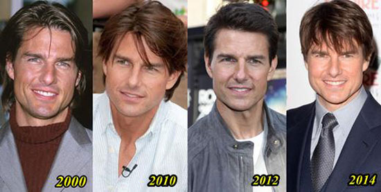 Tom Cruise Plastic Surgery Before and After Photos