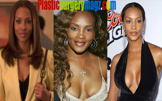 Vivica Fox Breast Implant Before and After