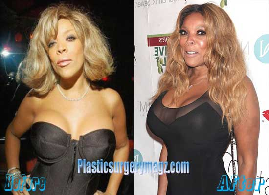 Wendy Williams Breast Implant Before and After