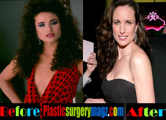 Andie Macdowell Breast Implant Before and After