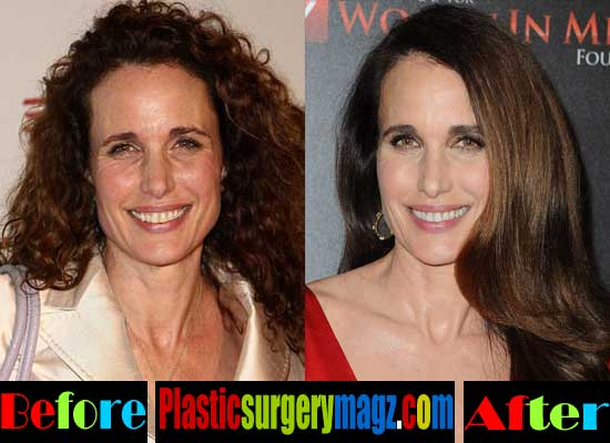 Andie Macdowell Facelift Before and After