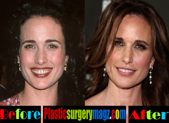 Andie Macdowell Nose Job Before and After